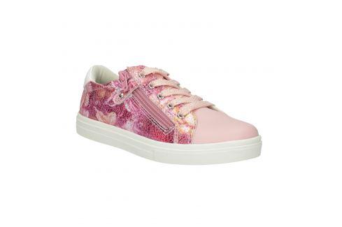 Dievčenské ružové tenisky so zipsom